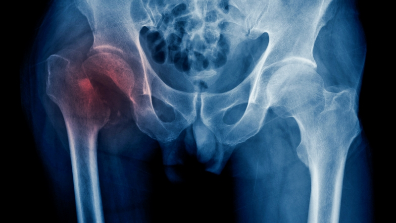 Ray Hip Fracture